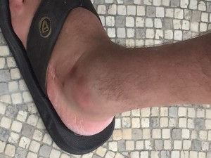 asu-ed-busted-ankle